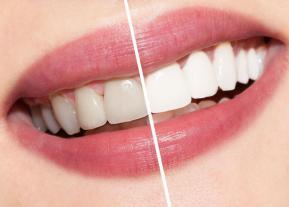 albire-dentara-cluj-1