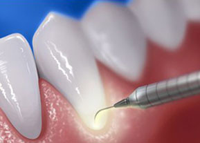 laser dentar cluj