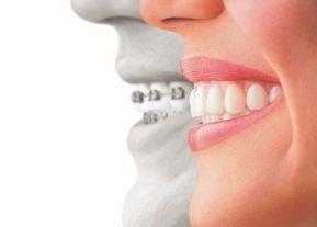 ortodontie-cluj
